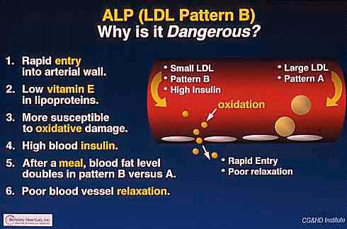 Pattern A vs Pattern B LDL densities